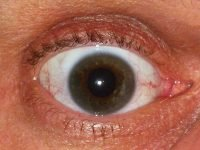 Gamer Eye Syndrome, Health Problems Caused By Video Games